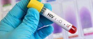 SE CONFIRMÓ SEGUNDO CASO EN EL MUNDO DE UNA PERSONA QUE SE RECUPERÓ DEL VIH.